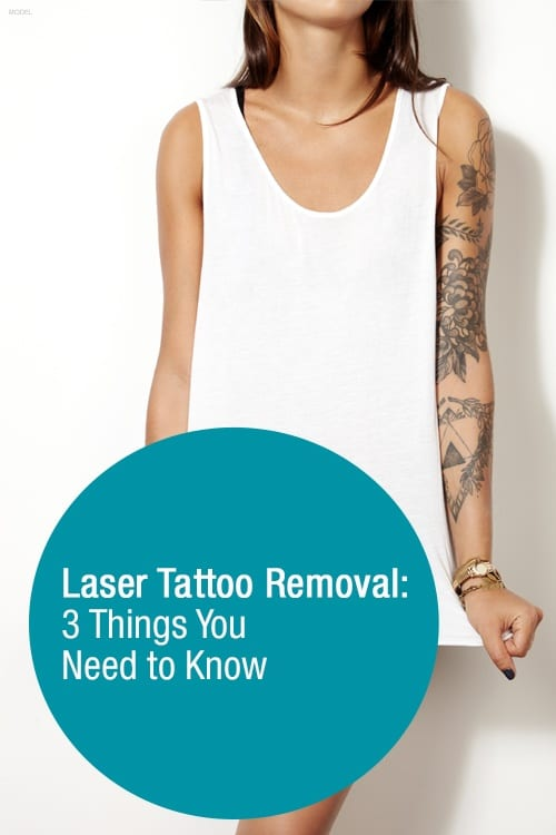If you're considering having a tattoo removed, there are 3 things you should know before you schedule your first treatment.