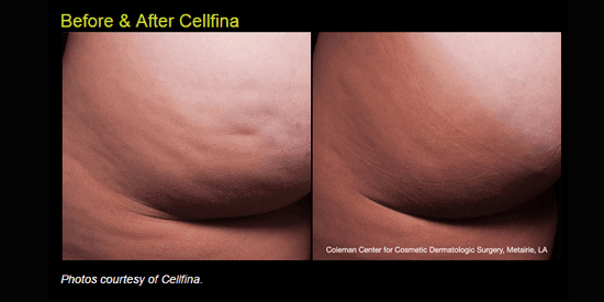 Learn more about Cellfina at our Idaho Falls plastic surgery practice