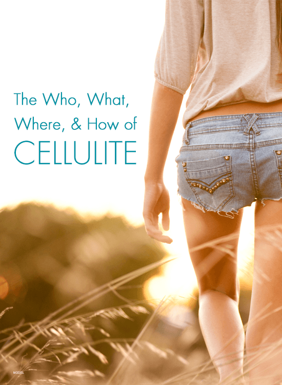 Learn more about celluite and a new treatment option