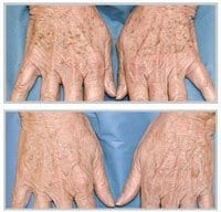 Before and after BBL on hands