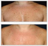 Before and after BBL on chest