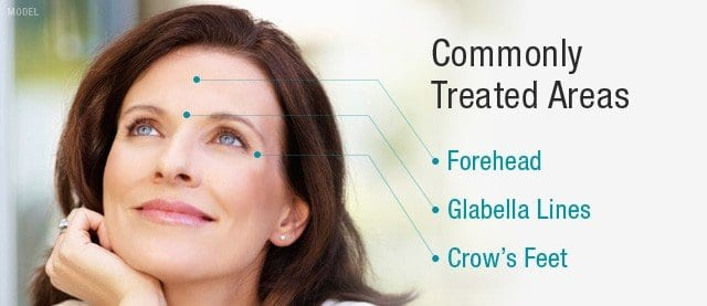 Woman smiling with text that reads BOTOX treatment areas: forehead, glabella lines, crow\'s feet