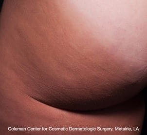 After Cellfina treatment on buttocks