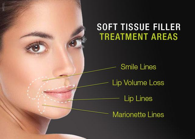 Dermal fillers treatment areas diagram