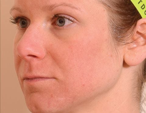 After Halo laser on woman\'s face