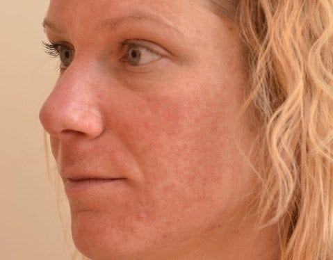 Before Halo laser on woman\'s face