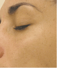 After HydraFacial treatment under the eyes