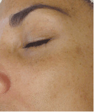 Before Hydrafacial under the eyes