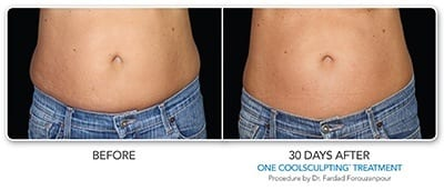 Before & After CoolSculpting