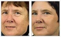 Before and after laser skin resurfacing on woman\'s face