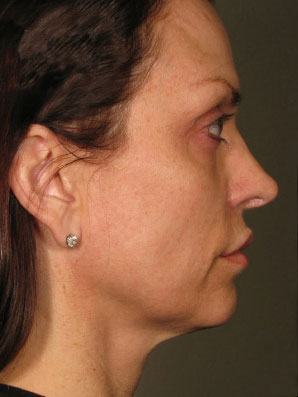 After Ultherapy on woman\'s face, profile view