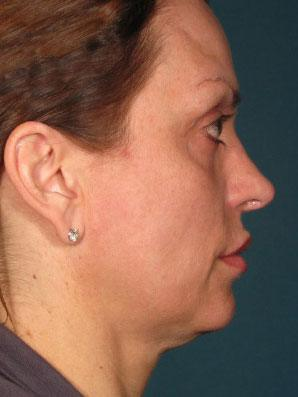 Before Ultherapy on woman\'s face, profile view