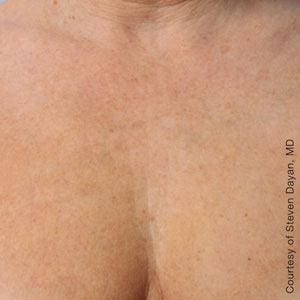 After Ultherapy on chest