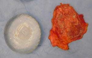 A new breast implant displayed next to a breast plant encased in a scar capsule