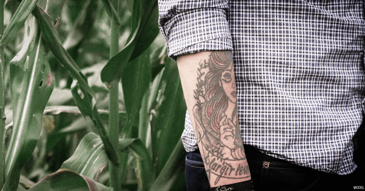 Laser Tattoo Removal In Idaho Falls What To Expect Freeman Plastic Surgery