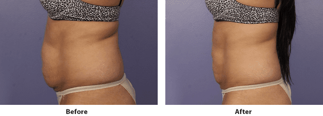 Side view of CoolSculpting before and after on the abdomen of a female patient