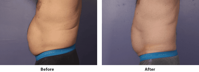 Side view of CoolSculpting before and after on the abdomen of a male patient